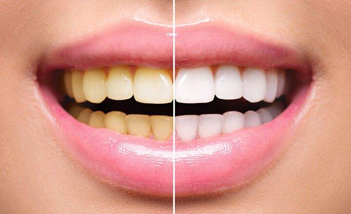 Sbiancamento dentale Salerno